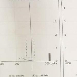 声阻抗B型&C型